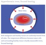 Hyperthermia: even, focused heating, Medical Center Frankfurt